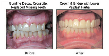 Before and After Dental Services