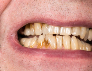 Close up macro of teeth of patient with receding gums
